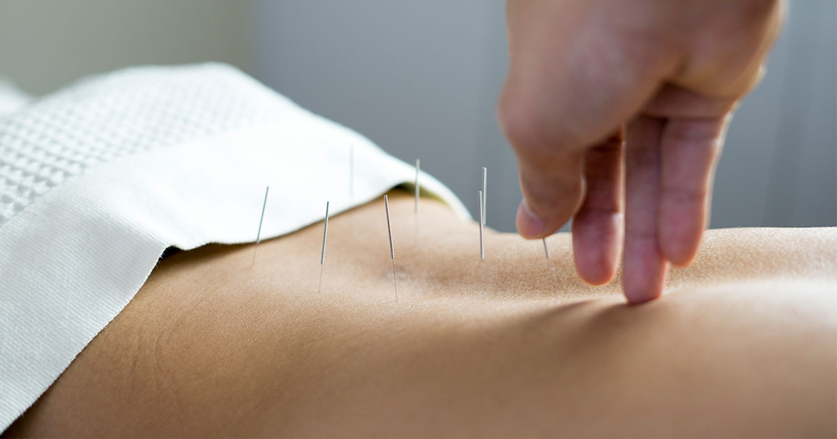 Acupuncture on lower back