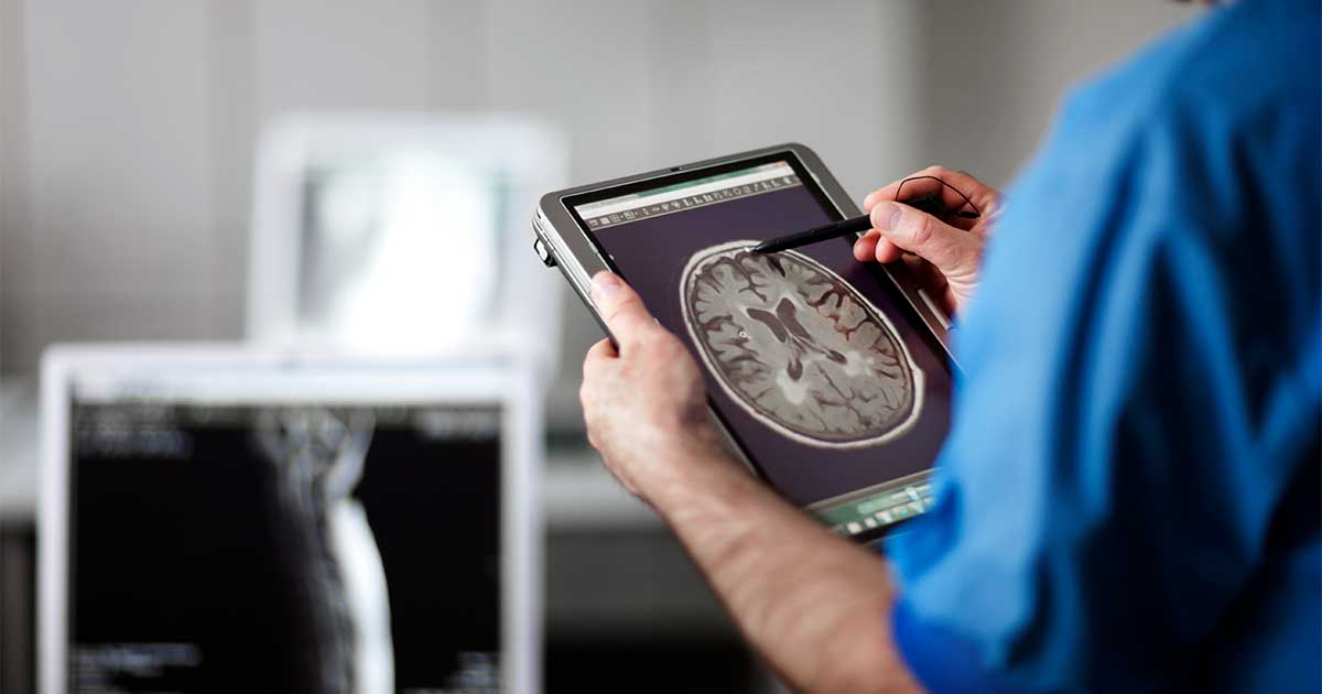 A doctor looking at a brain scan on a tablet.